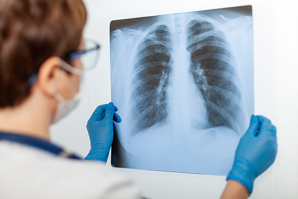 Doctor holding x-ray of lungs